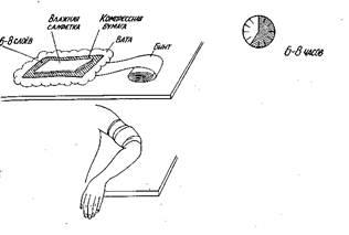 Постановка согревающего компресса на сустав суставы-артрит