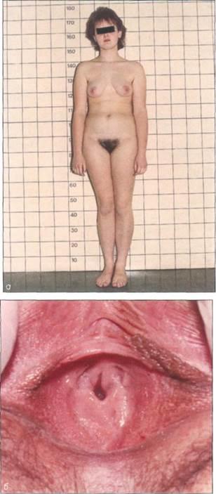 глядя фото пизды во время пубертатного периода женского тела