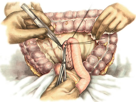 Реабилитация после полостной операции на брюшной полости