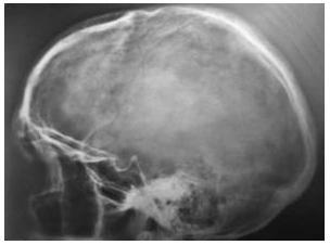 Рентген черепа внутричерепное давление