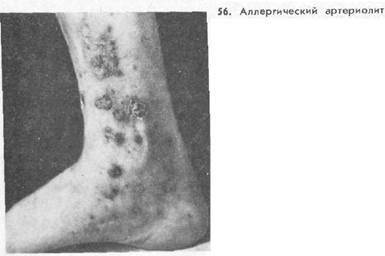 Поверхностные аллергические васкулиты