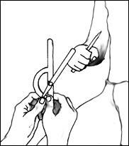 Изображение - Амплитуда движения коленного сустава image034