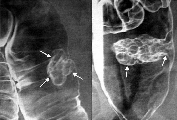 На исход лечения влияет стадия, на которой была диагностировна опухоль, состояние самого пациента, его возраст, сопутствующие заболевания.