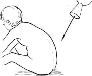 Изображение - Рентгенография тазобедренных суставов по лаунштейну image453