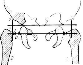 Изображение - Рентгенография тазобедренных суставов по лаунштейну image491