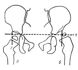 Изображение - Рентгенография тазобедренных суставов по лаунштейну image497