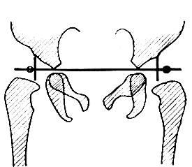 Изображение - Рентгенография тазобедренных суставов по лаунштейну image499