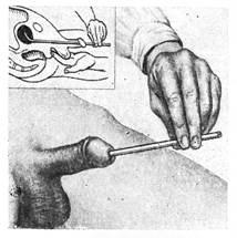 Засунула мужику в уретру — pic 3