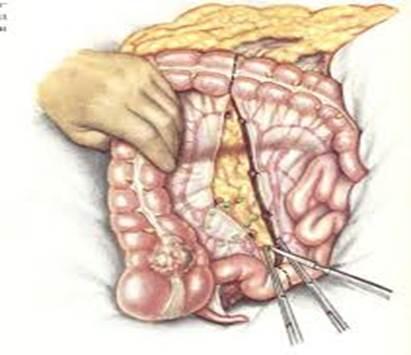Перекрут жирового подвеска сигмовидной кишки диета