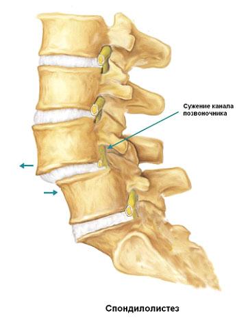 Изображение - Факторы влияющие на стабильность сустава image019