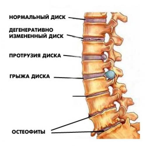 Изображение - Факторы влияющие на стабильность сустава image020