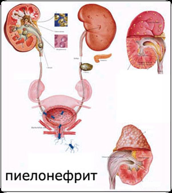 Обострение хронического пиелонефрита почек