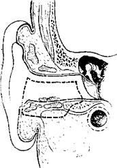 Удаление ушной раковины 14