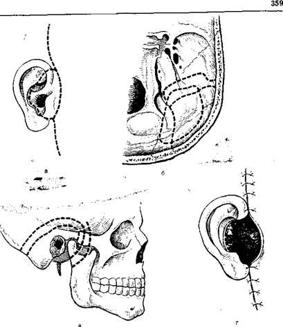 Удаление ушной раковины 17