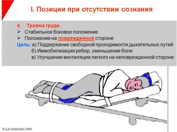 Способ транспортировки пациента в коме