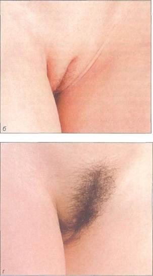 Фото пизды при половом созревании #8