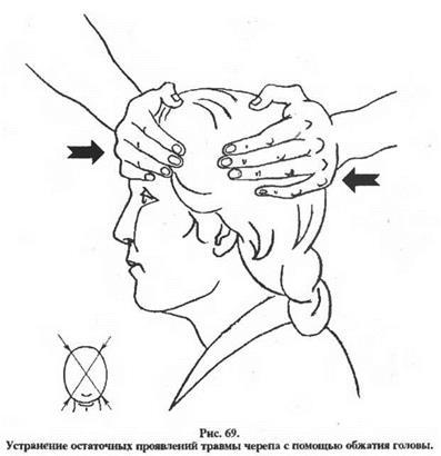 Вправление головы после сотрясения