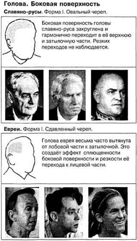 форма черепа еврея фото ханна