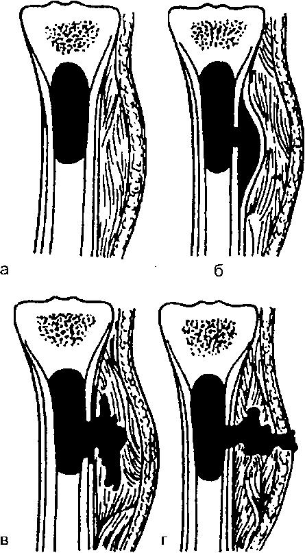Изображение - Гнойные заболевания костей и суставов image110