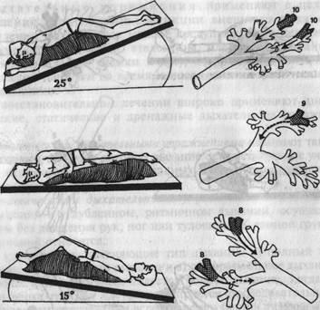 Дренаж при пневмонии