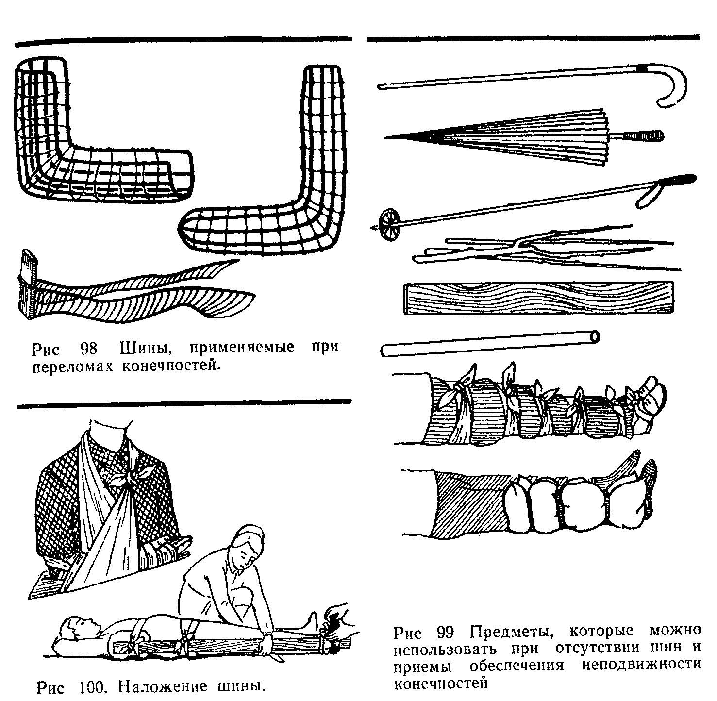 наложение шин с иллюстрациями