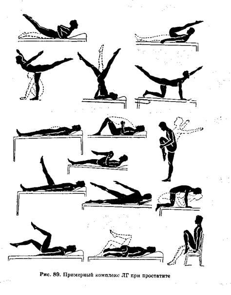 Физ упражнения при лечении простатита