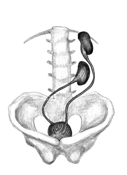 Студопедия — Аномалия расположения и формы почек