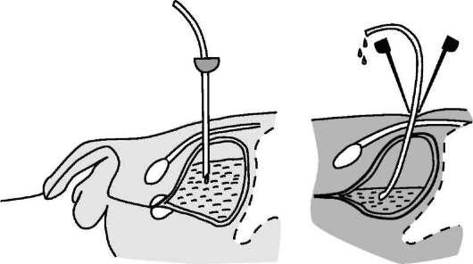 Дренирование мочевого пузыря техника
