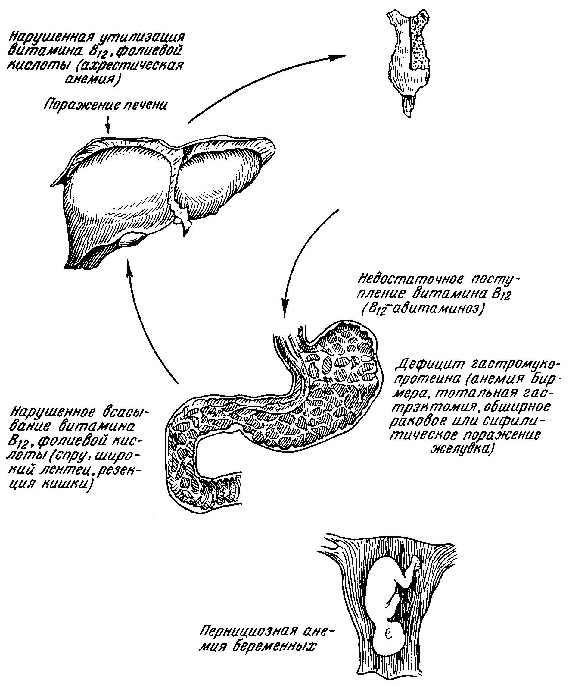 Пернициозная анемия: симптомы и лечение B12-дефицитной анемии