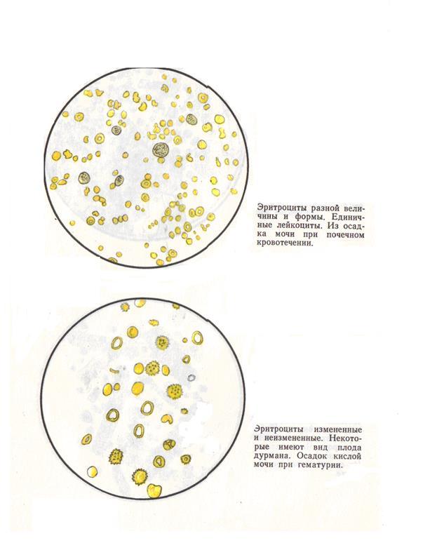 Измененные эритроциты в моче при простатите при простатите аводарт