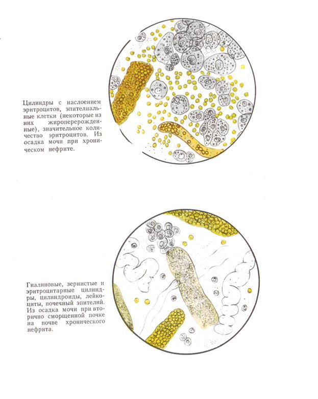 Эритроциты в сперме моче