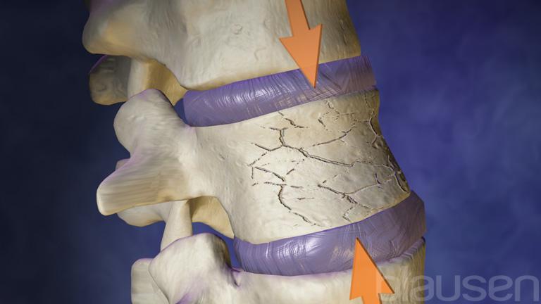 компрессионные переломы позвоночника картинки указке многих
