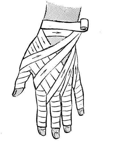 Наложить повязку на палец руки картинки