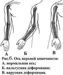 При варусной деформации локтевого сустава ось верхней конечности проходит деформирующий артроз локтевого сустава положена ли группа инвалидности