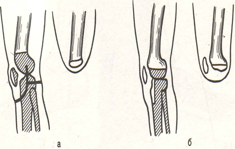 Схема ампутации на уровне сустава крем эффектум от суставов купить в уфе