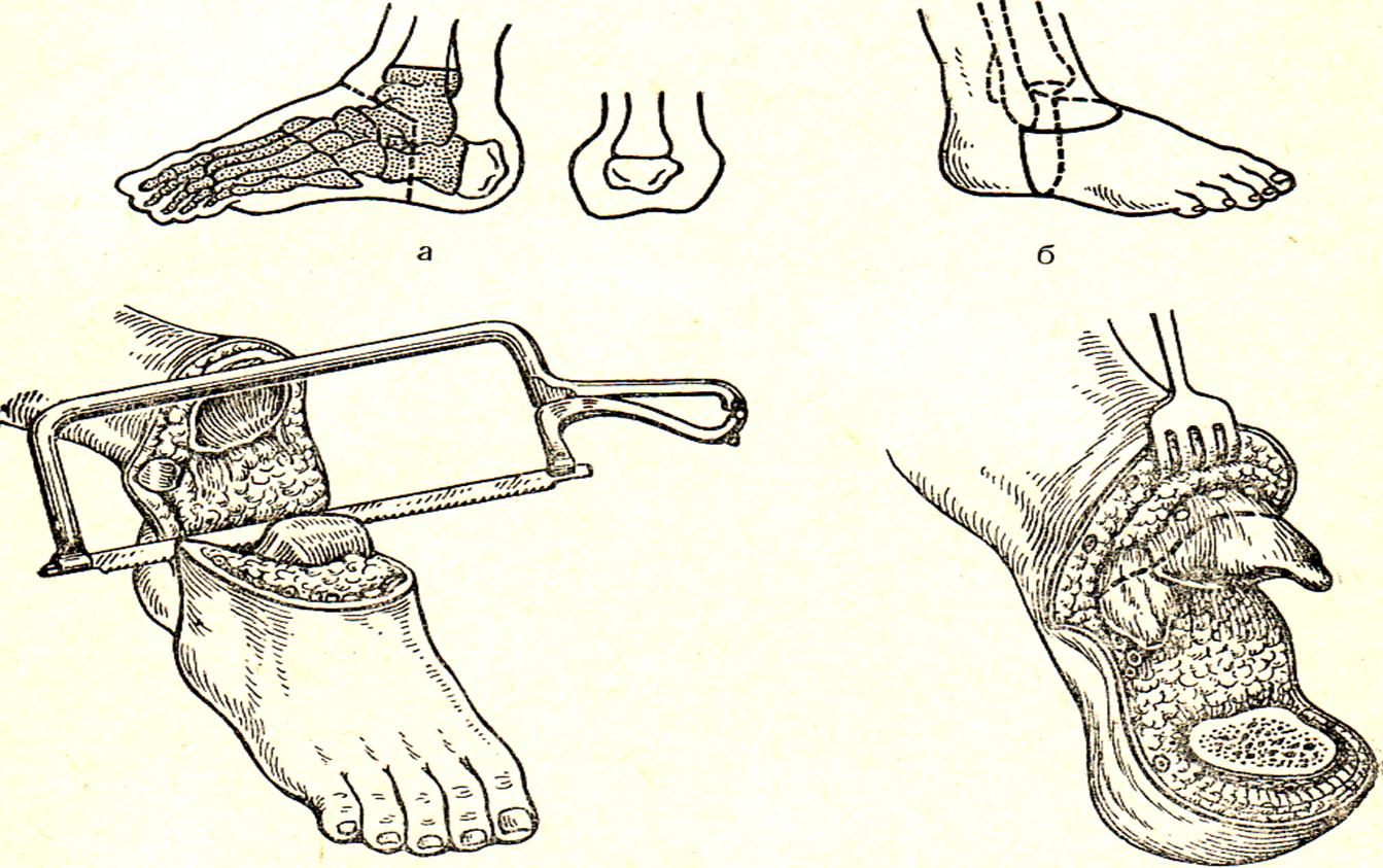 7.экзартикуляции верхней конечности в плечевом суставе, экзартикуляции бедра что такое мениск коленного сустава симптомы