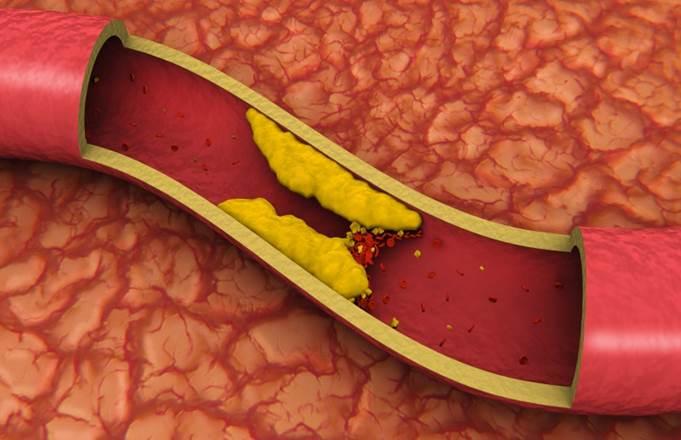 Доклад на тему холестерин 4958