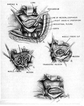 consecințele varicoase ale operațiunii