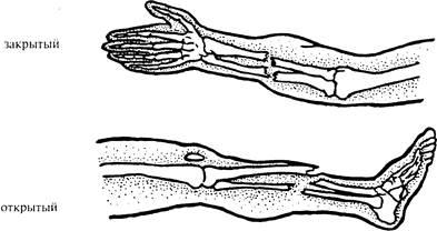 дисплазия тазобедренного сустава упражнения