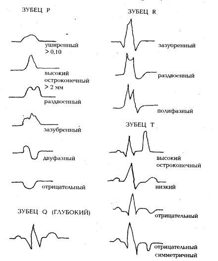 Зубцы и интервалы ЭКГ — Студопедия