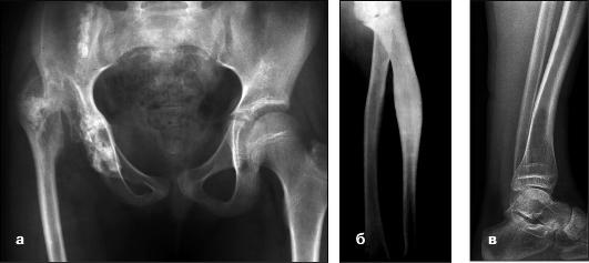 Гипоплазия тазобедренных суставов протезирование сустава большого пальца руки цена
