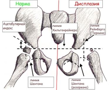 Изображение - Рентген описание дисплазии тазобедренных суставов у детей image001