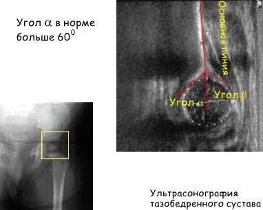 Изображение - Рентген описание дисплазии тазобедренных суставов у детей image012