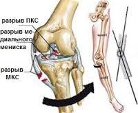 Разрыв боковой связки коленного сустава картинки скакательные суставы у коров