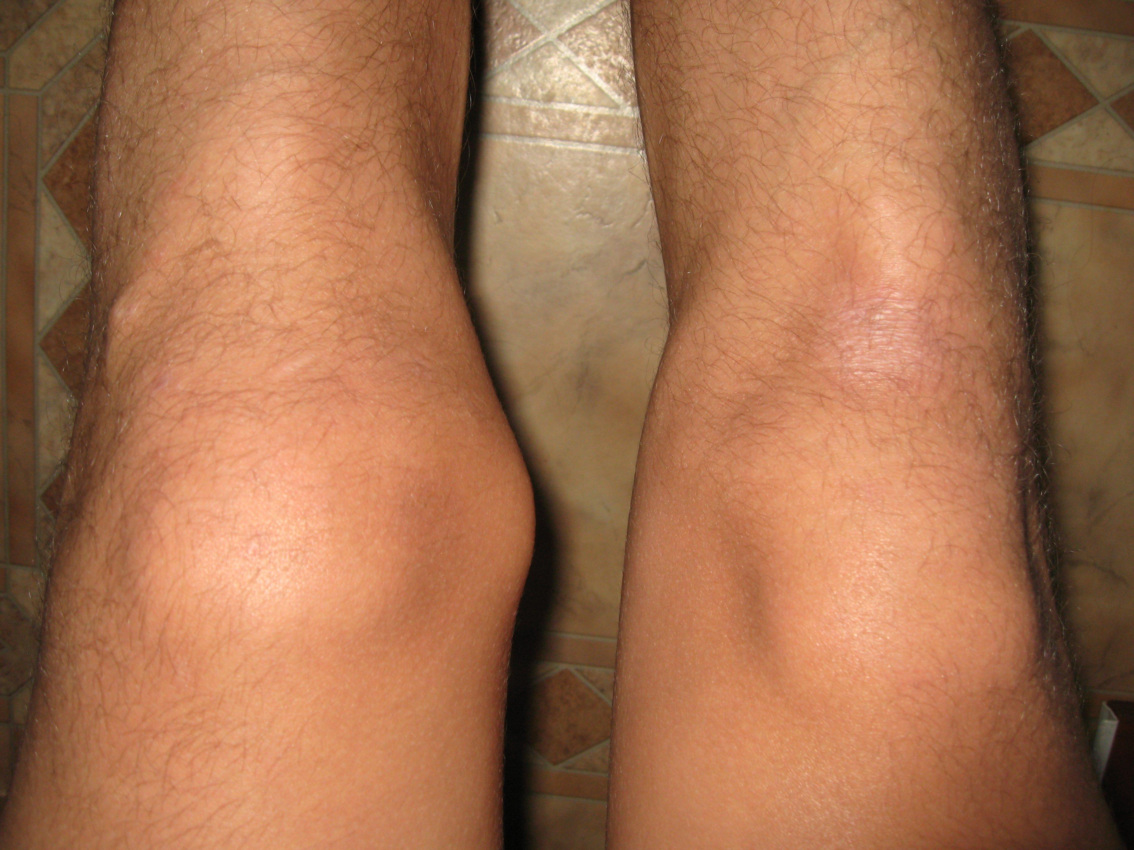 Боковая нестабильность коленного сустава оперативное лечение гемартроза локтевого сустава