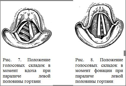 Парез и паралич голосовых складок